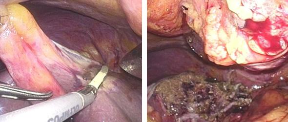 図2 腹腔鏡下肝切除術