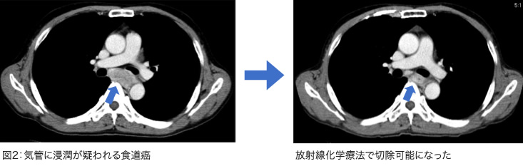 気管に浸潤が疑われる食道癌、放射線化学療法で切除可能になった
