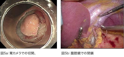胃カメラでの切開、腹腔鏡での閉鎖